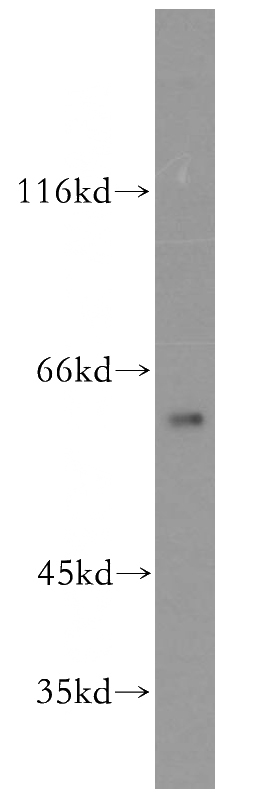 mouse brain tissue were subjected to SDS PAGE followed by western blot with Catalog No:109518(CPNE6 antibody) at dilution of 1:500
