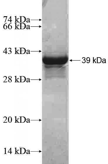 Human EXOSC10 Recombinant protein (6*His tag)