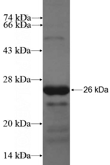 Human DCHS1 Recombinant protein (6*His tag)