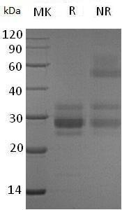 Human VEGFC (His tag) recombinant protein