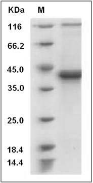 Mouse S100B / S100beta Protein (Fc Tag) SDS-PAGE