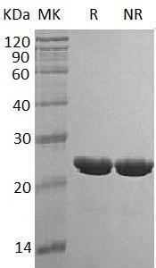 Human TMPO/LAP2 (His tag) recombinant protein