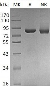 Human THOP1 (His tag) recombinant protein
