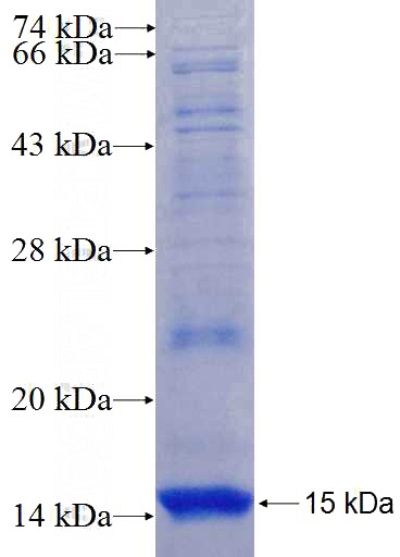 Human Supervillin Recombinant protein (6*His tag)