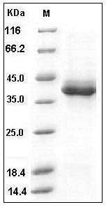 Human S100B  (Fc Tag) recombinant protein