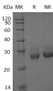 Human FSHB (His tag) recombinant protein