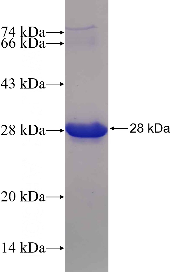Human CHD5 Recombinant protein (6*His tag)
