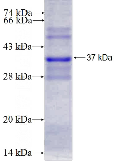 Human DNAJC10 Recombinant protein (GST tag)
