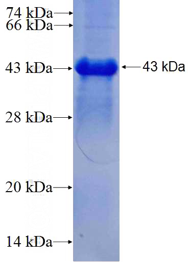 Human ANKRD17 Recombinant protein (GST tag)